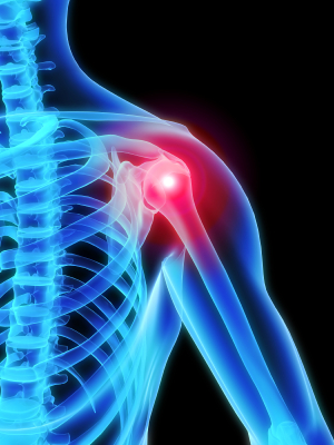 shoulder replacement surgery utah