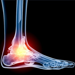 ankle pain utah