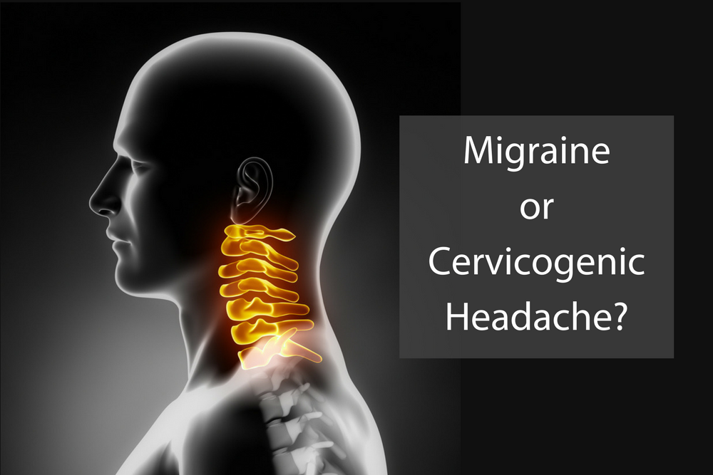 cervicogenic-headache